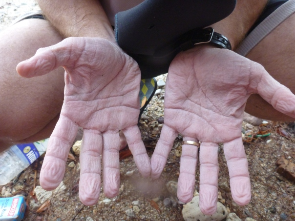 My hands after 5 hours immersed in water.